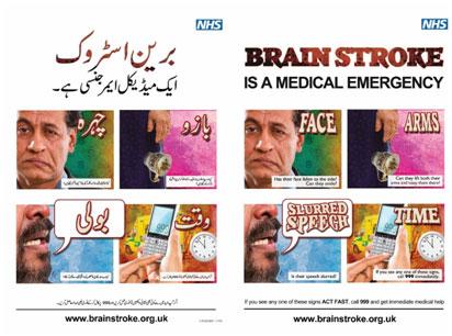 NHS-Brain-Stroke-Posters1